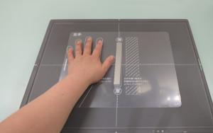 大阪府守口市の診療所よしなかクリニックの骨粗鬆症検査の実施例