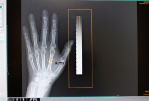 大阪府守口市の診療所 よしなかクリニック 骨粗鬆症検査の結果のレントゲン写真
